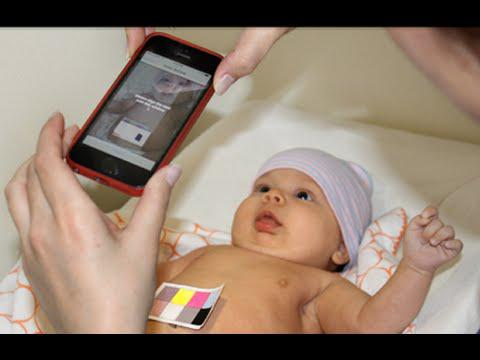 Jaundice Detection App for Newborn Babies