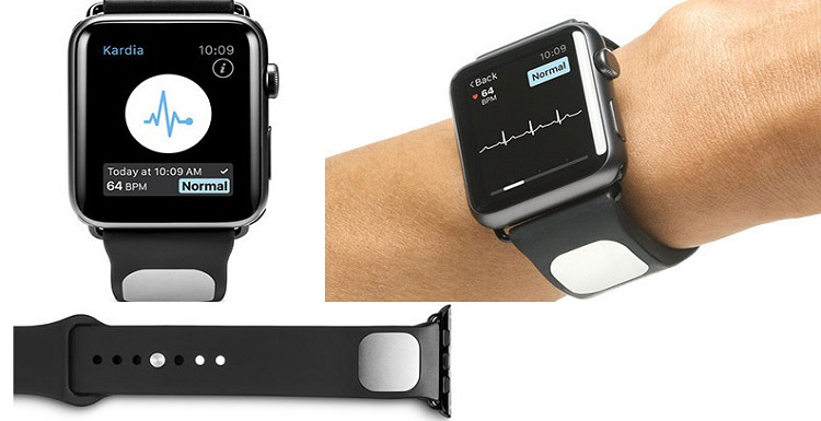 AliveCor Kardia Bands